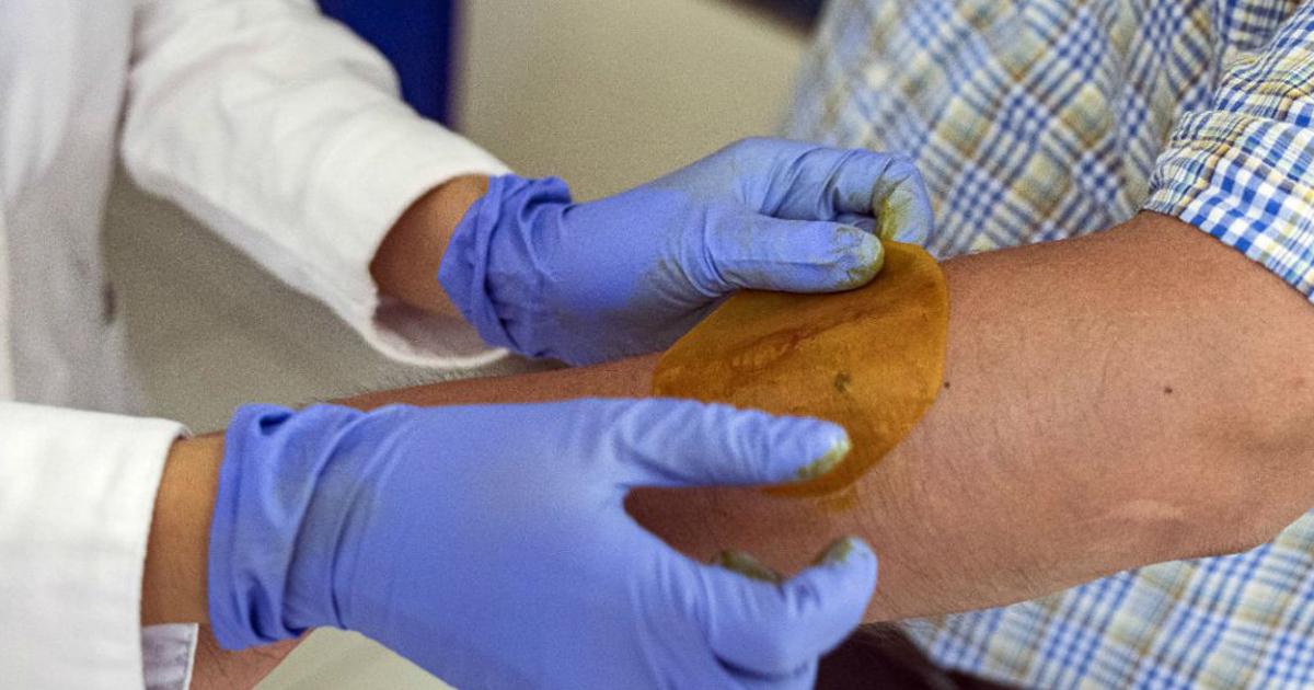 Pesquisadores criam adesivo que regenera pele de pessoas diabéticas em 21 dias
